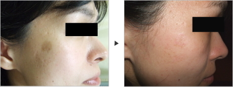 しみ除去 Removal of Brown Spots