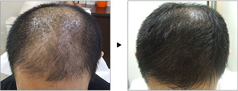 育毛薄毛治療 Hair Growth Treatment