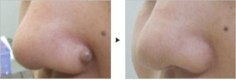 いぼ・ほくろの除去 Removal of Warts and Moles